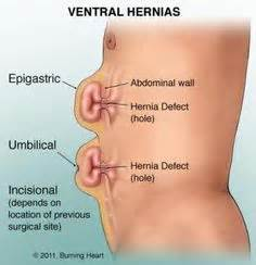 can groin hernia affect your erection picture 5