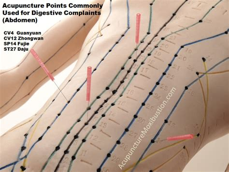 weight loss acupuncture picture 7
