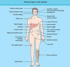symptoms of liver failure picture 3