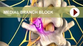 cervical facet joint procedure picture 10