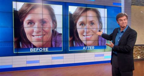 anti aging creams dr oz uses on ellen picture 3