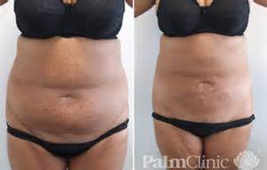 tummy tuck weight gain picture 7