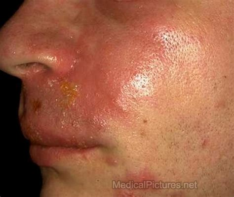 fever lip blister picture 5