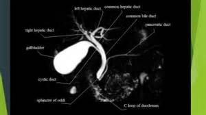gall bladder pictures picture 13