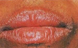 monilia vaginal infection picture 2