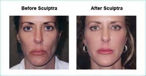 is sculptra good for acne scaring picture 3