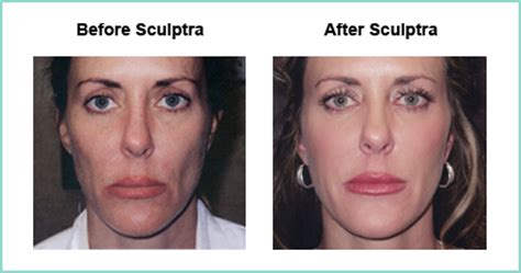 is sculptra for acne scares picture 9