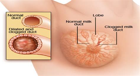 yeast infections natural remedies picture 7