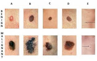 skin cancer identification picture 3