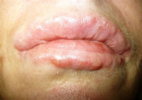 white glands on lips picture 14