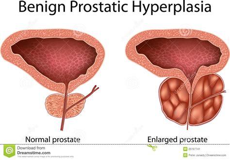 Benign prostate hyperplasia picture 5