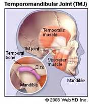 can teeth cause neck pain picture 11
