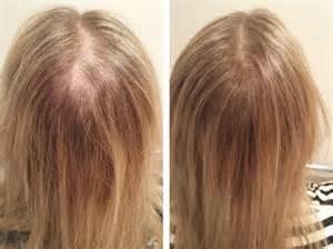 hormonal hair loss will it grow back picture 12