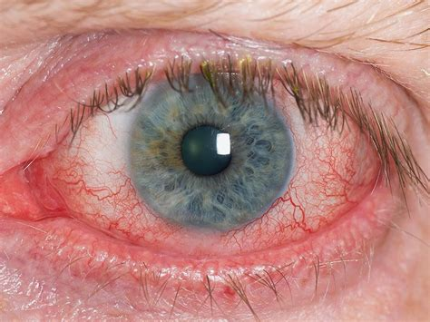 dry, red eyes, liver disease picture 11