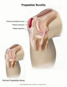bursitis picture 1