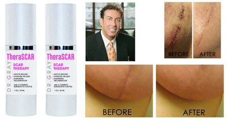 dr michael gray acne scar removal picture 1