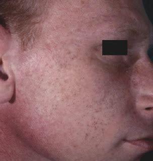 acne infantum picture 11