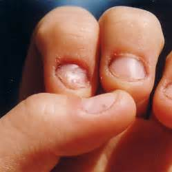 long nails penile incertion sex picture 15