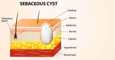 essential oil for cyst removal picture 11