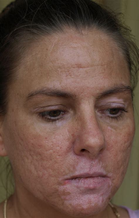 acne scar reduction system by dermajuv picture 1