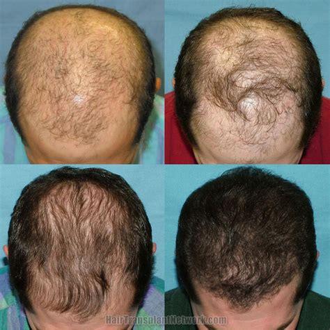 avodart on hair loss picture 10