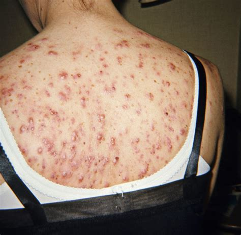 back and shoulder acne picture 1