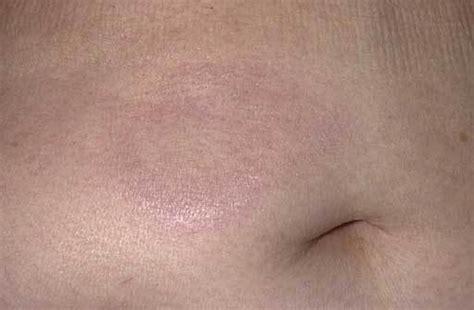lymphoma skin rash picture 1