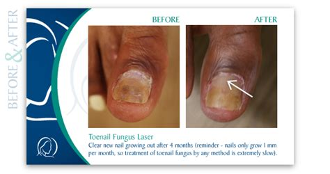 foot laser treatment +ma picture 10