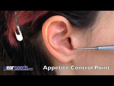 acupuncture for appetite control picture 11
