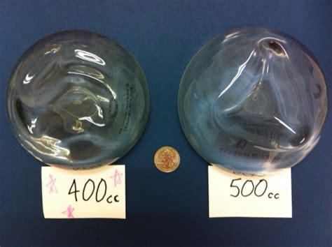 500 club breast implants picture 7