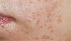 genital warts cure picture 2