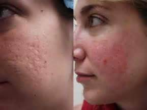 acne scar removal home laser picture 7
