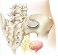 bladder stimulator interstim picture 5