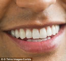how much is it to whiten your teeth picture 9