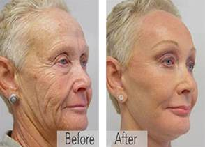 dr oz wrinkle cream to look 15-20 yr younger picture 7
