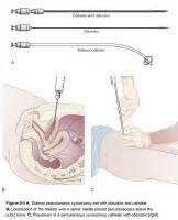 percutaneous drainage of bladder picture 9