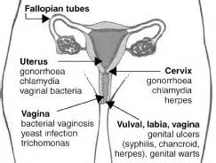 bacterial infections of the genital tract picture 4