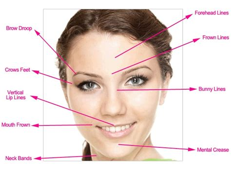 chin hair removal women picture 11