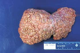 final stages of liver cirrhosis picture 2