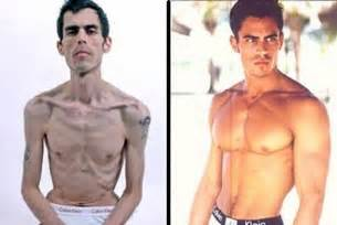 transformations medical weight loss picture 10