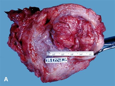bladder carcinoma cell gall squamous picture 5