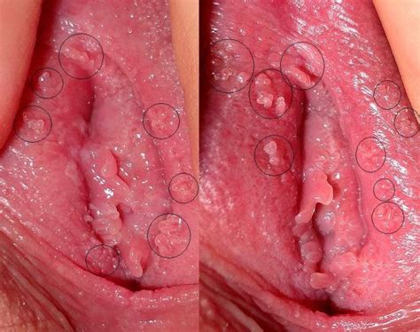 warts on the outer lips of the vagina picture 6