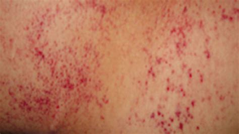 bleeding red dots skin picture 3