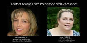 prednisone and weight gain picture 2