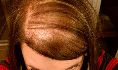 alapica female hair loss picture 13