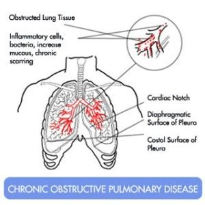 natural cure for copd picture 10