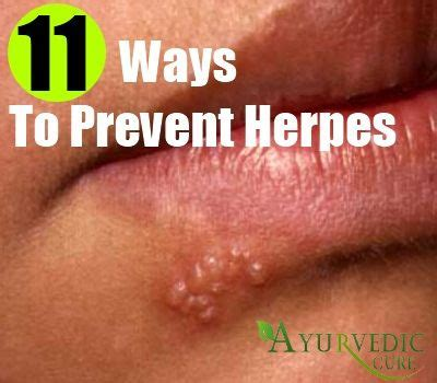 is there a way to stop herpes viral picture 1