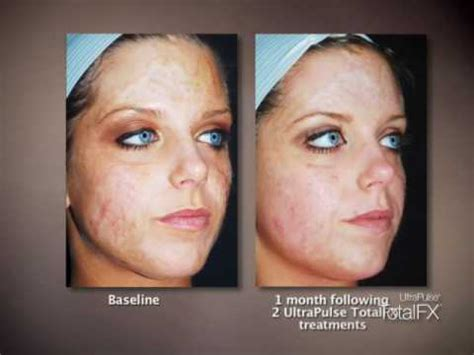 can a co2 total fx full face laser picture 9