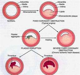What causes high blood cholesterol levels picture 15