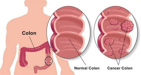 colon cancer and fever picture 15